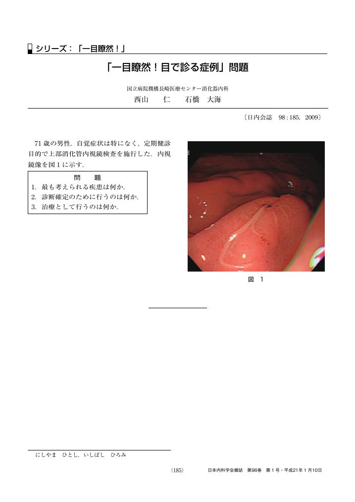 transplantation at a glance pdf
