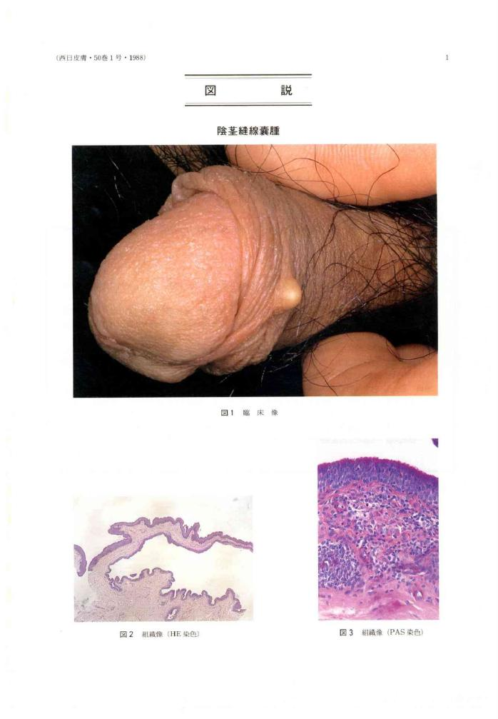 Perianal Median Raphe Cyst: A Rare Lesion with Unusual ...